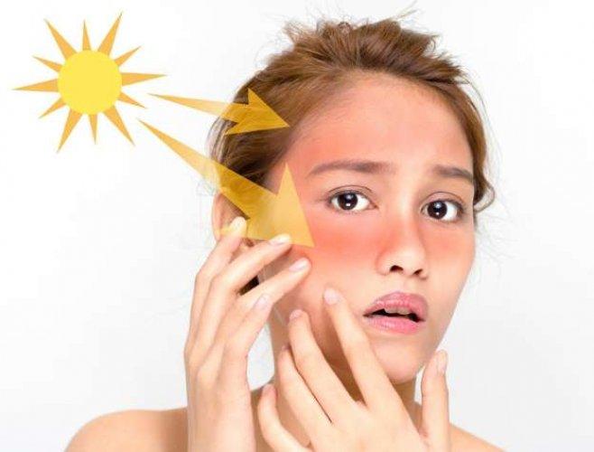 تجنب وعلاج حروق الشمس خلال السفر