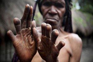 بتر الإصبع